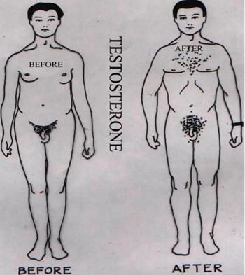 Známky a příznaky Klinefelterova syndromu se u pacientů velmi liší - příznaky jsou individuální.