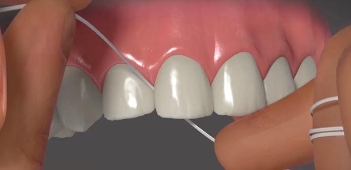 Zvykněte si na používání zubní nitě.