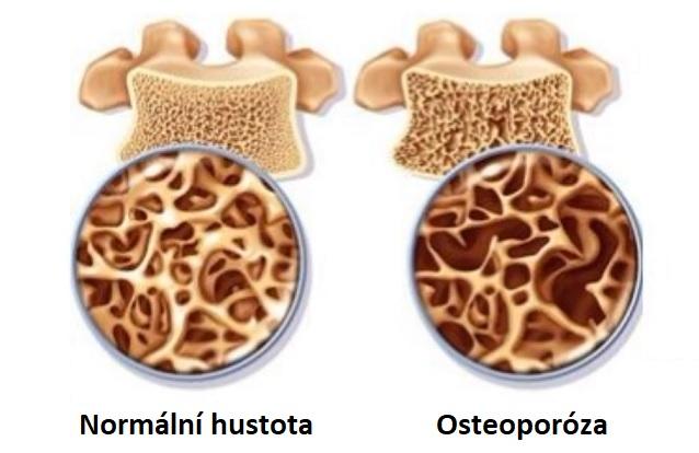 Hustota zdravé kosti a při osteoporóze.