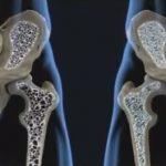 Osteopenie – nižší hustota kostí – příznaky, příčiny a léčba