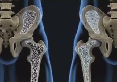 Osteopenie - příznaky, příčiny a léčba