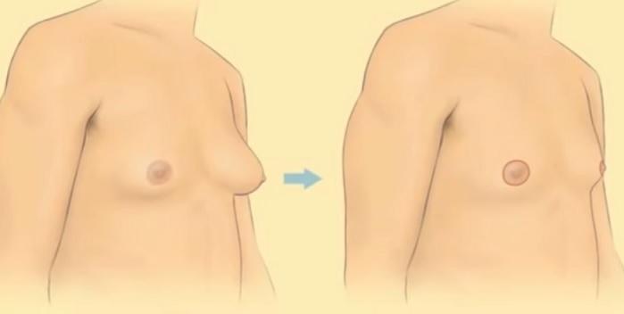 Zvětšené prsní tkáně se dají řešit chirurgicky.