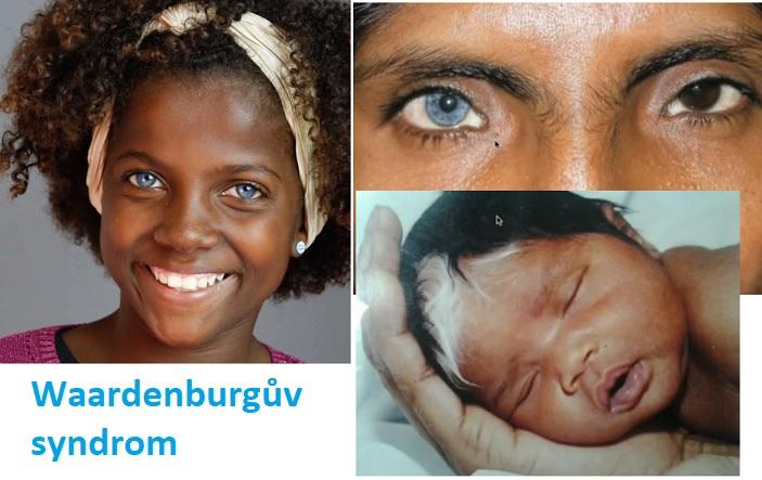 Několik fotografií pacientů s Waardenburgovým syndromem.