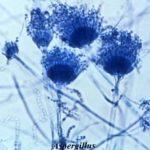 Aspergilóza – příznaky, příčiny a léčba