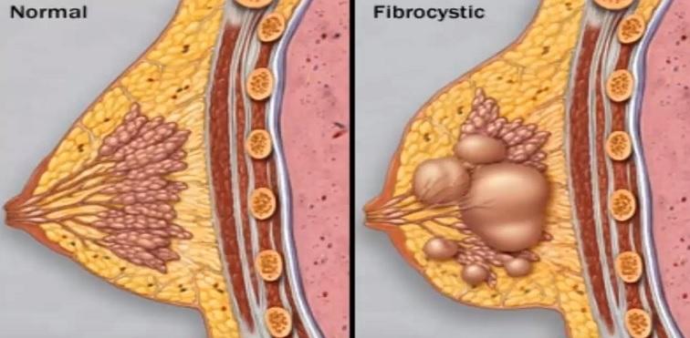 Porovnání normální a fibrocystická tkáň