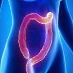 Gardnerův syndrom – příznaky, příčiny a léčba