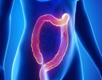 Hlavním příznakem Gardnerova syndromu je mnohočetný růst polypů v tlustém střevě.