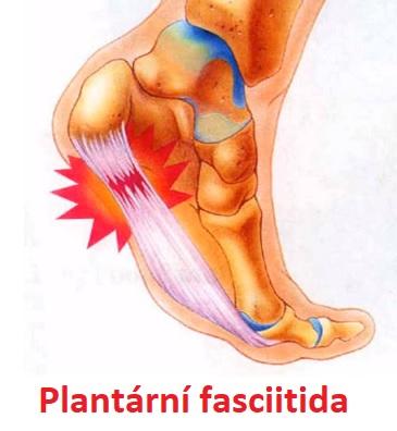 Bolest u plantární fasciitidy je obvykle nejhorší ráno, když uděláte první kroky ven z postele.