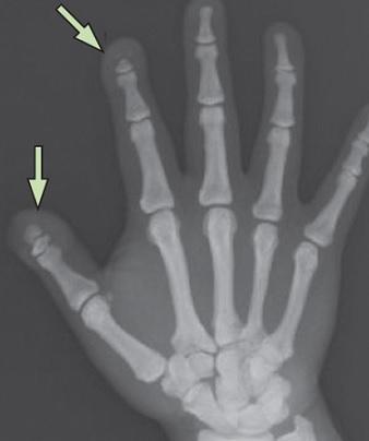 Krátké prsty jsou jedním z příznaků pyknodysostózy.