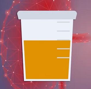 Máte tmavou moč? Může to být jedním z prvních příznaků dehydratace.