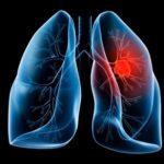 Jaký je rozdíl mezi karcinomy a sarkomy?