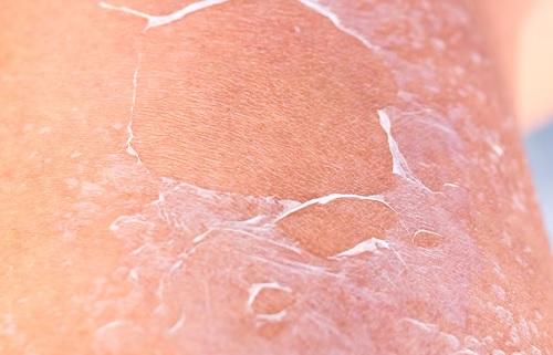 Proč je kokosový olej super pro vaši pokožku?