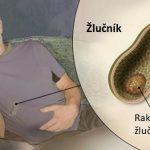 Rakovina žlučníku – příznaky, příčiny a léčba