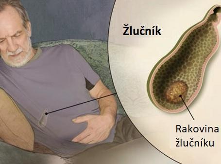 Rakovina žlučníku je relativně vzácnou chorobou.