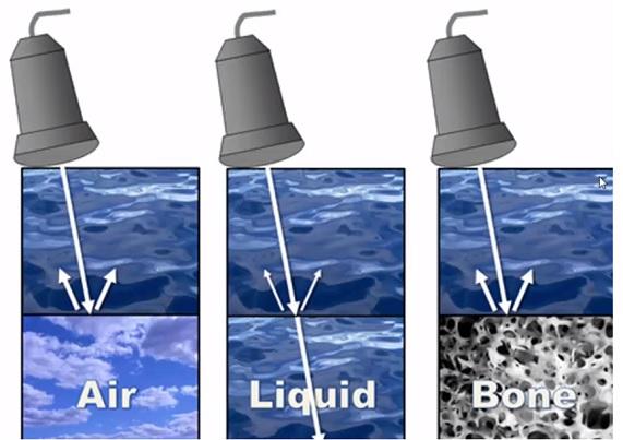 Kosti nebo plyn mohou blokovat ultrasonografii