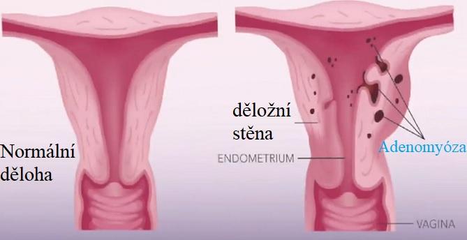 Poprvé byla adenomyóza popsána v roce 1860. Je běžnou benigní děložní abnormalitou.