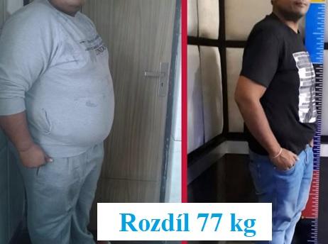 Bariatrická chirurgie pomáhá lidem se závažnou obezitou.
