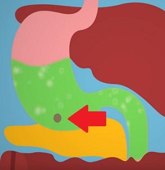 Bezoáry se nejčastěji vyskytují v žaludku.
