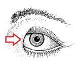 Epikantus – kožní řasa – co je to? Příznaky, příčiny a léčba