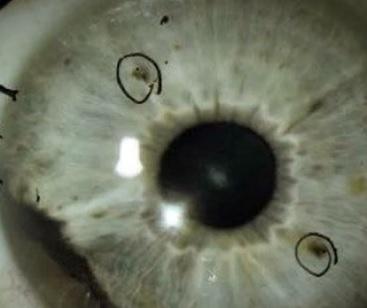 Rakovina oka - příznaky, příčiny, diagnostika a léčba