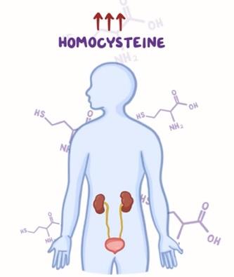 Příběh pacientky s homocystinurií