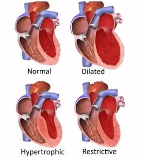 Kardiomyopatie (onemocnění srdečního svalu) - příznaky, příčiny a léčba
