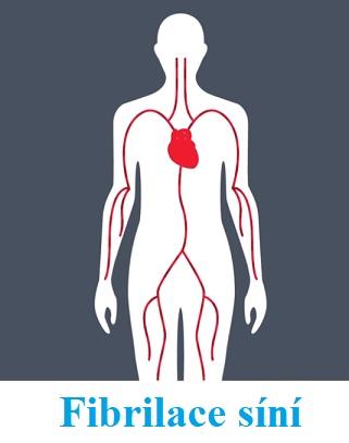 Významnou roli při prevenci onemocnění fibrilace síní hraje zdravý životní styl, všímání si příznaků, pravidelné měření pulsu a preventivní prohlídky včetně vyšetření EKG, protože včasné odhalení fibrilace síní může zachránit život.