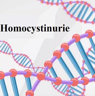 Homocystinurie je genetické onemocnění.