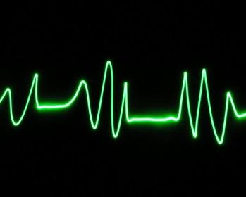 Příčiny kardiovaskulárních onemocnění - jaké jsou nejnebezpečnější a nejčastější?