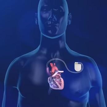 Implantabilní kardioverter-defibrilátor - co je to a k čemu je dobrý?