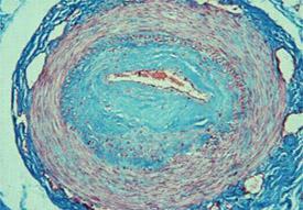 Průřez tepnou prstu pacienta s dlouhodobou sklerodermií