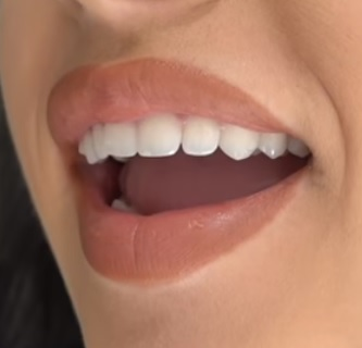 Co dělat pro zuby, aby byly bílé