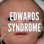 Edwardsův syndrom (trisomie 18) – co je to – příznaky, příčiny, léčba
