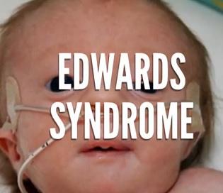 Edwardsův syndrom (trisomie 18) - co je to - příznaky, příčiny, léčba