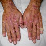 Porfyrie – příznaky, příčiny a léčba