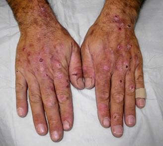 Porfyrie - příznaky, příčiny a léčba