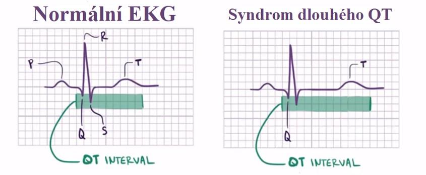Porovnání na EKG