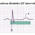 Syndrom dlouhého QT intervalu – co je to – příznaky, příčiny a léčba
