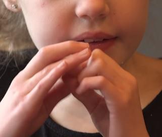 Pro tento syndrom je typické opakované mnutí či mytí rukou, často v kombinaci s dáváním ruky do úst.