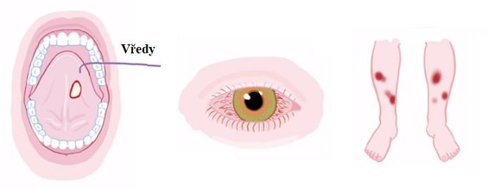 Vředy v ústech a problémy s očima a pokožkou jsou častými symptomy Behcetova syndromu.