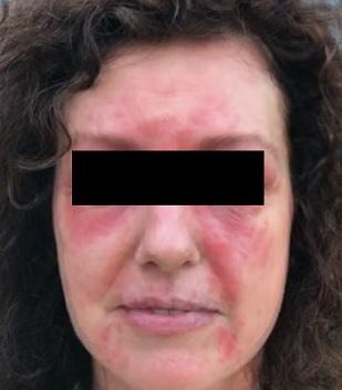 Dermatomyositida - příznaky, příčiny a léčba