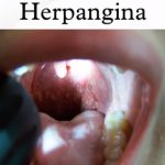 Herpangína – příznaky, příčiny a léčba – jak na ni?