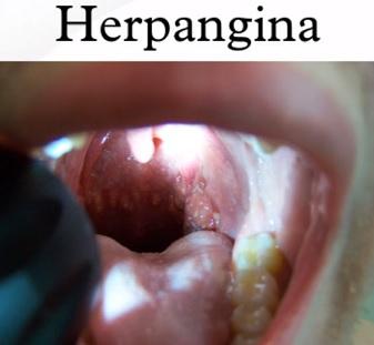 Vředy v ústech mohou znamenat herpangínu.