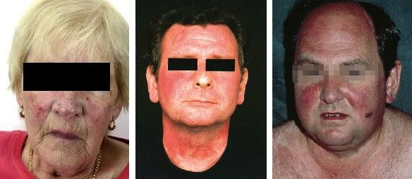 Pacienti s příznaky v obličeji