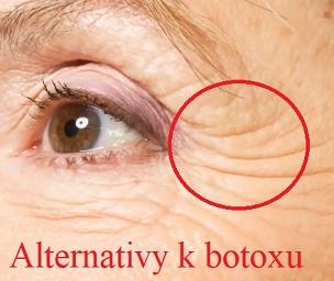 7 alternativ k botoxu při léčbě vrásek