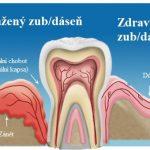 Parodontální chobot (parodontální kapsa) – co je to a jak na léčbu?