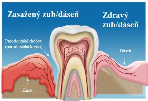 Takto nějak vypadá parodontální chobot (parodontální kapsa)