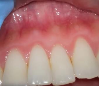 Zánět dásní (gingivitida) - příznaky, příčiny a léčba zánětu
