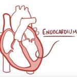 Infekční endokarditida (bakteriální endokarditida) – co je to – příznaky, příčiny a léčba