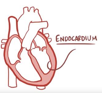Infekční endokarditida - co je to - příznaky, příčiny a léčba